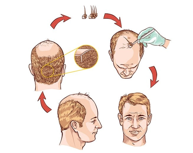 How to plan for a hair transplant procedure