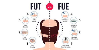 is fut or fue hair transplant